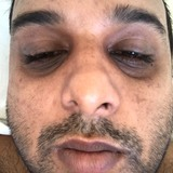 Shah from Rose Hill | Man | 32 years old | Cancer